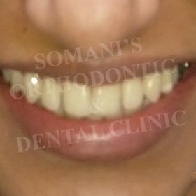 orthodontic treatment in ahmedabad