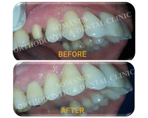 dental depigmentation before after