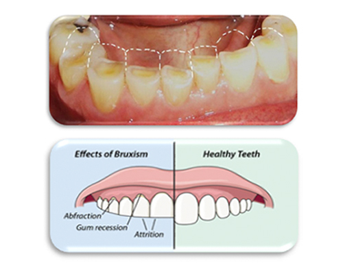 lingual braces in ahmedabad