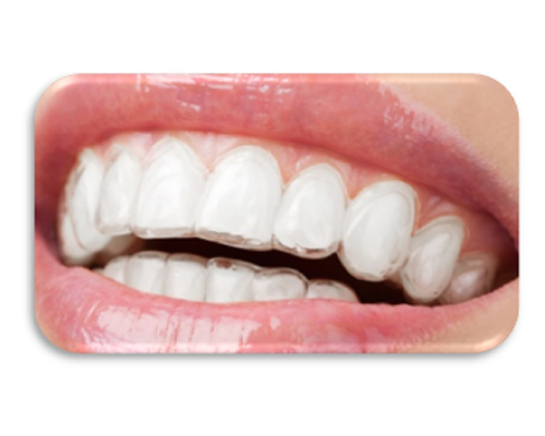 invisible braces aligners no braces