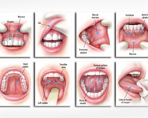 treatment of oral cancers