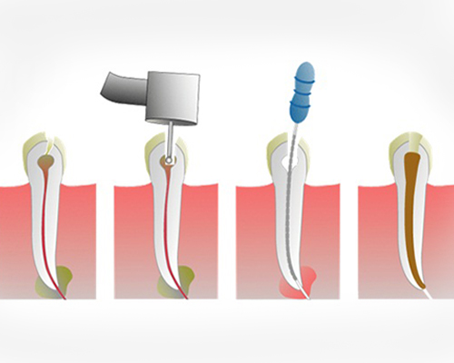 Painless Single Sitting Root Canal Treatment
