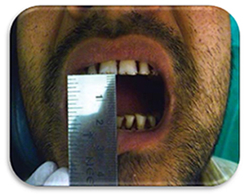 treatment of reduced mouth opening